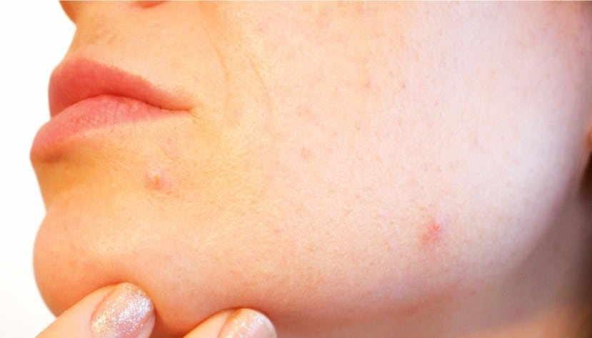 Curcuma Curcumin bei Hautkrankheiten