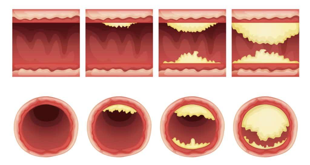 Plaqua Ablagerung Blutgefäße Cholesterin Atherosklerose
